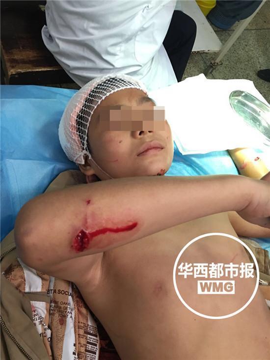 12岁男孩放学路上遭猴群围攻 全身10多处受伤